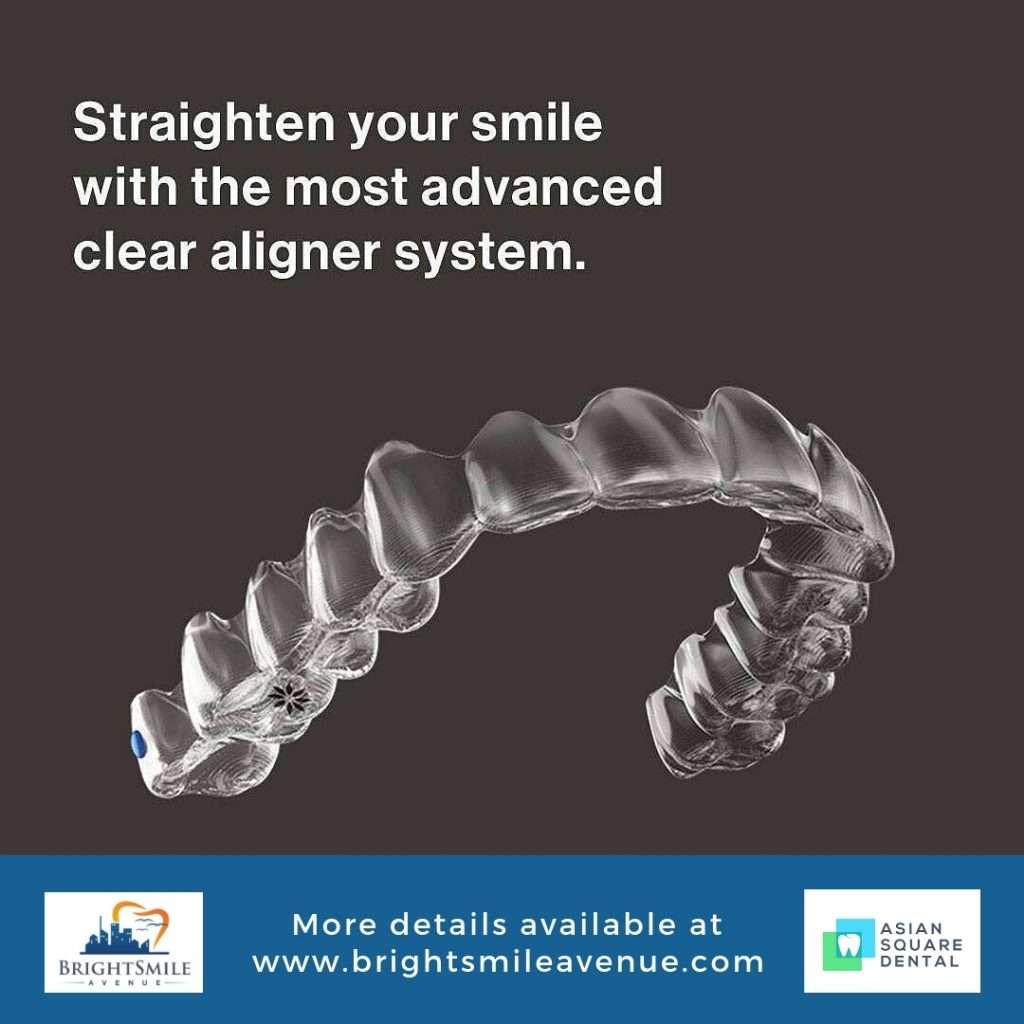 Invisalign   Bright Smile Avenue